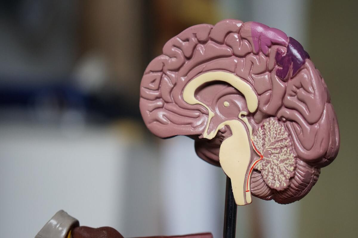 demenza senile - sintomi